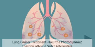 Lung Cancer Treatment-How the Photodynamic Therapy offers a Safer Alternative
