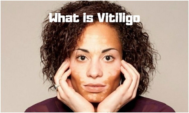 What is Vitiligo- What causes Vitiligo