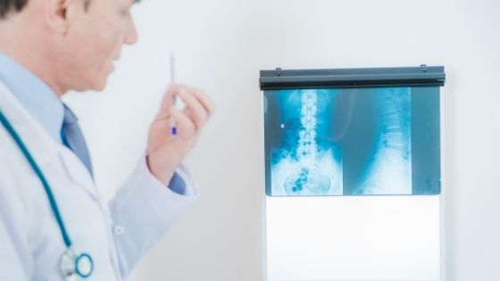 The Best Spine Specialist in Udaipur To Heal You