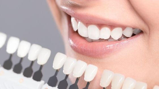 Why Do You Need to Consider Dental Implants for Missing Teeth